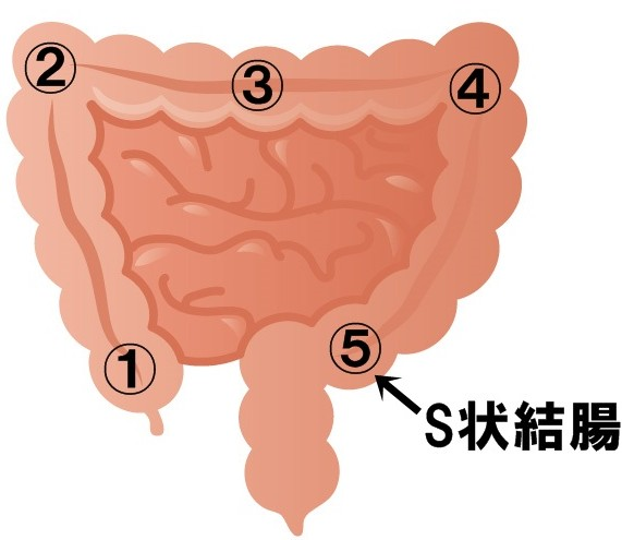 腸もみ 腹部マッサージ S状結腸