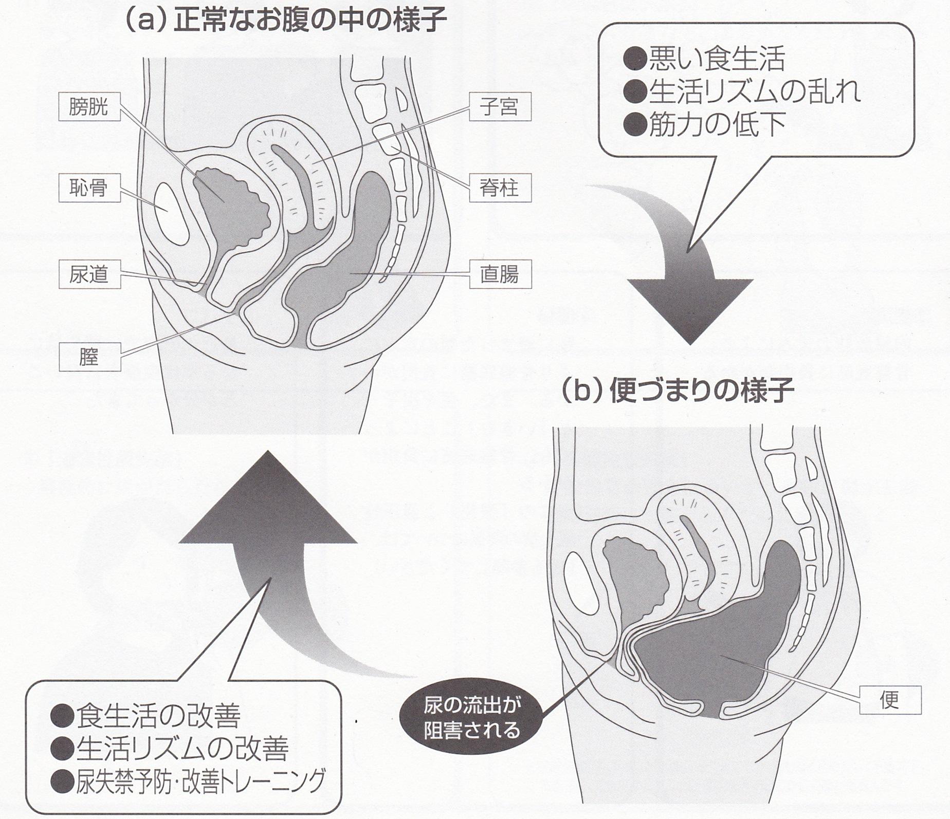 尿モレ 尿失禁 リハビリ治療体操 便秘