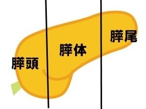 左上腹部痛み 膵臓部位名