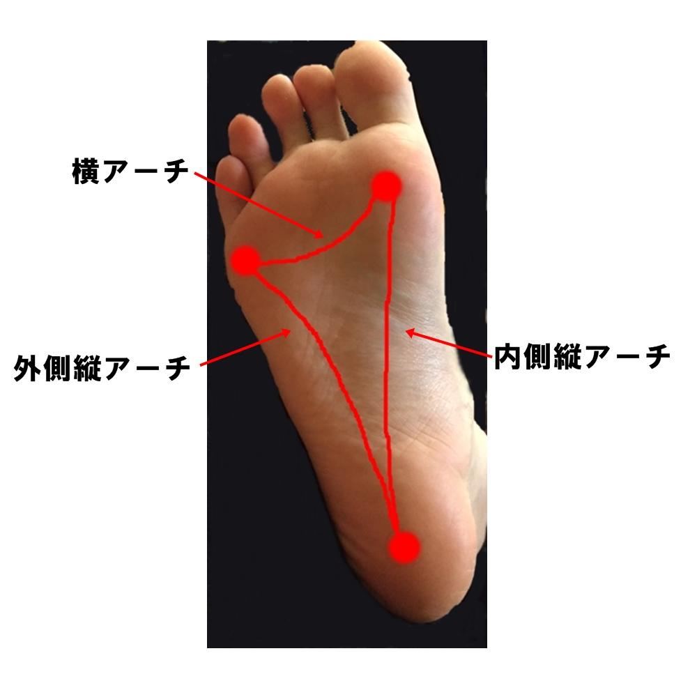 ウォーキング筋肉痛 治し方 足アーチ