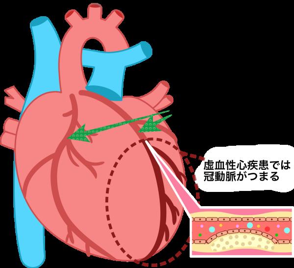 左肩の痛み心臓