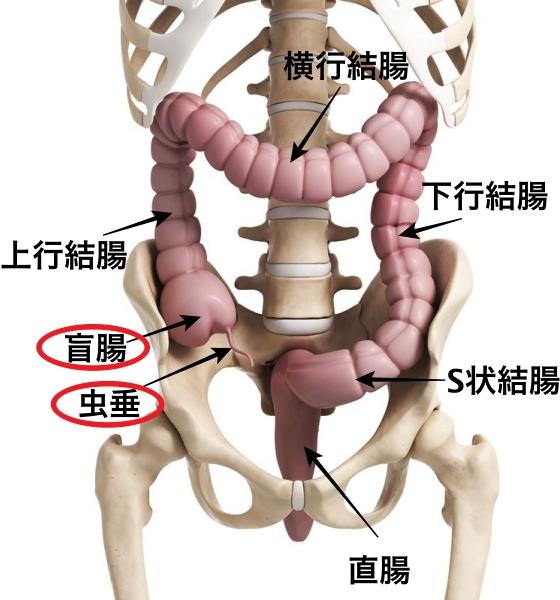 腹膜炎痛み虫垂炎 盲腸