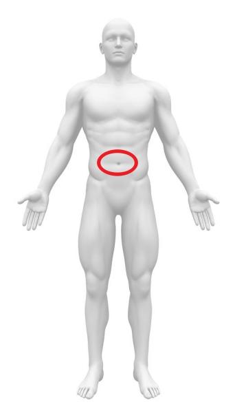 急性腹症 大動脈解離 へそ周囲痛