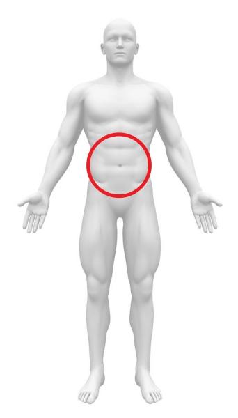 急性腹症 肝癌破裂 腹部全体痛