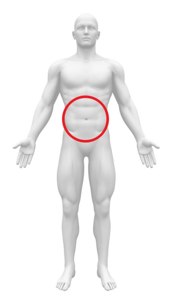 急性腹症 汎発性腹膜炎 腹部全体痛