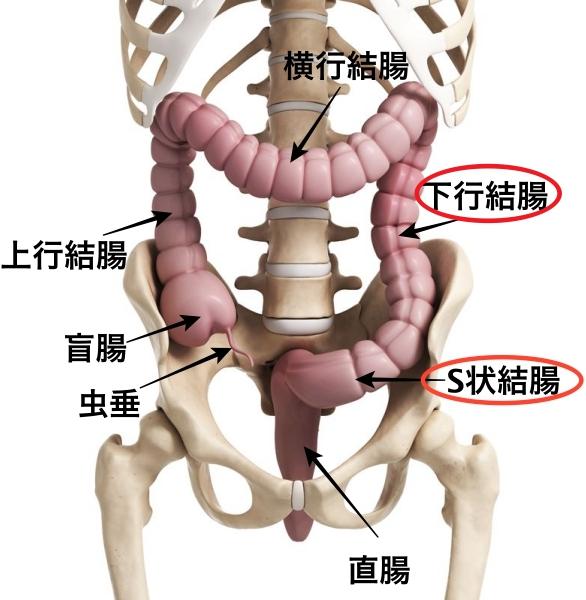 虚血性大腸炎 下行結腸 S状結腸