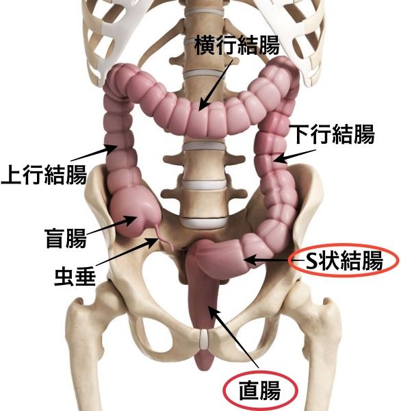 イレウス管 目的 適応疾患 S状結腸 直腸