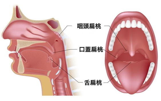 16695575 - tonsils in open mouth and sagittal view
