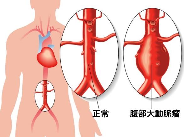 11864444 - abdominal aortic aneurysm