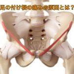 足の付け根の痛みの原因とは?鼠径ヘルニアの症状を解説!