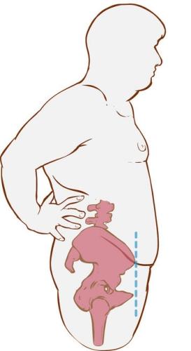 52747667 - white backround vector illustration of a forward hip tilt