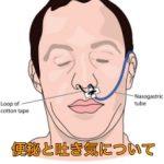 便秘による吐き気、嘔吐の原因は腸閉塞(イレウス)かも?